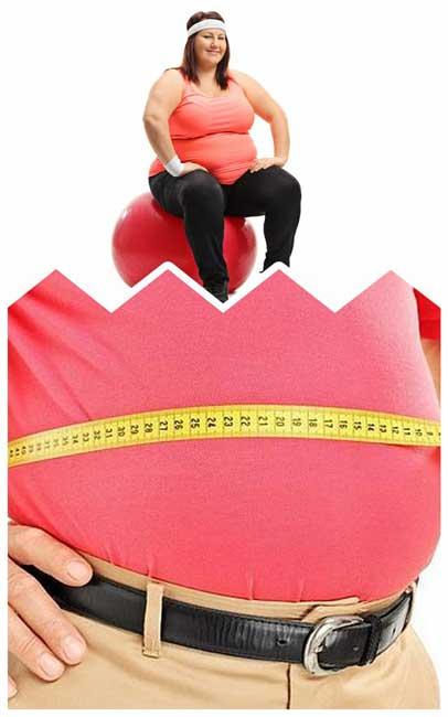 obesidad grado 1
